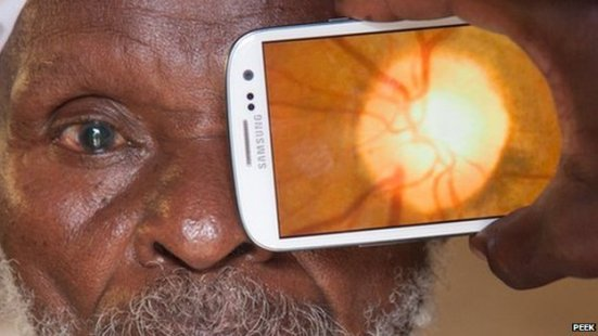 Strathclyde and the NHS engineer new smartphone device that hopes to tackle blindness